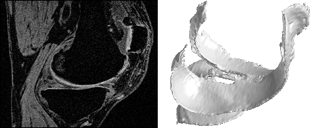 Automatic Segmentation of Bone and Cartilage in Knee MRI